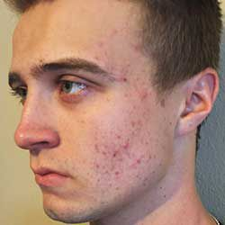 Proactiv Solution Results: Dylan D Before