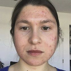 ProactivMD Results: Havah Before