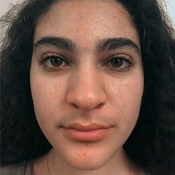 ProactivMD Results: Jineen M After