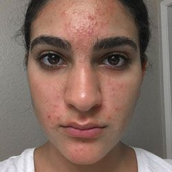 ProactivMD Results: Jineen M Before
