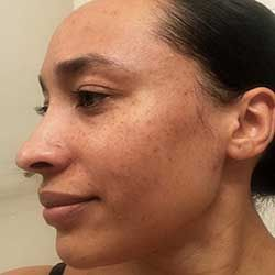 ProactivMD Results: Joslyn W After