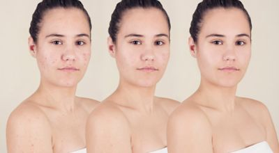 The Acne Cycle How To Get Rid Of Acne Fast Proactiv