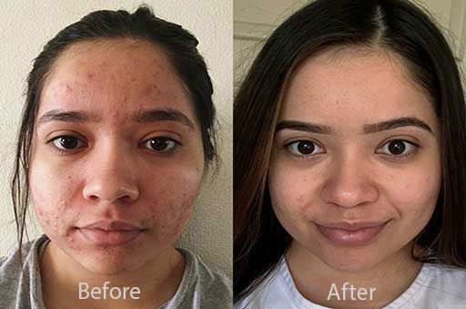 Your Proactiv Story Before & After Pics