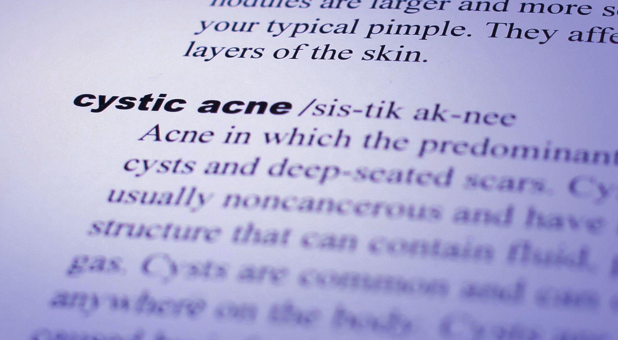 types-acne-cystic-acne