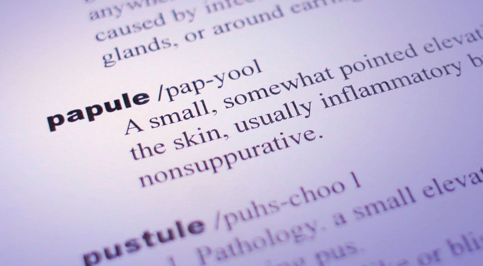 types-acne-cystic-papule